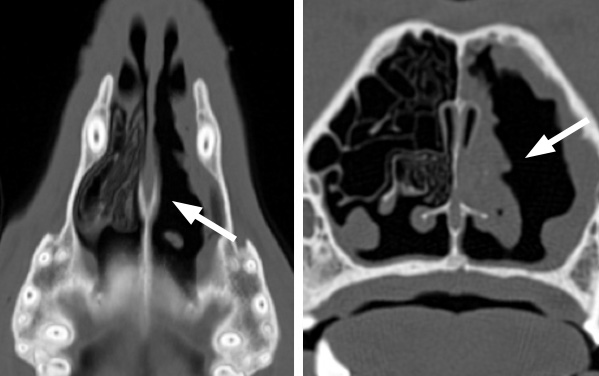 These CT scan images show two views (from above and end-on) of a disease called destructive rhinitis, most commonly caused by a fungus that invades the nose. You will see that the nasal cavity on the left of each image looks normal, with lots of normal scrolled structures inside the nose called turbinates. On the other side, these delicate structures are almost entirely absent (arrows), having been destroyed by the fungus.