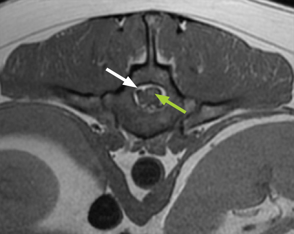 MRI image of the spine showing abnormal material (a 'slipped disc' – white arrow) next to the spinal cord (green arrow), with no need for dye injection