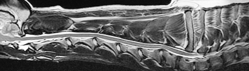 Cervical Spondylopathy Wobbler Syndrome In Dogs