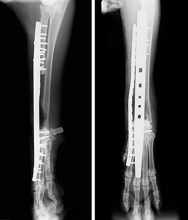 X-rays obtained after surgery in a Newfoundland with an osteosarcoma affecting the radius. The tumour has been excised (cut out) and the gap in the bone bridged with two plates that are attached to the remaining bones with multiple screws. The carpus (wrist joint) has been fused.
