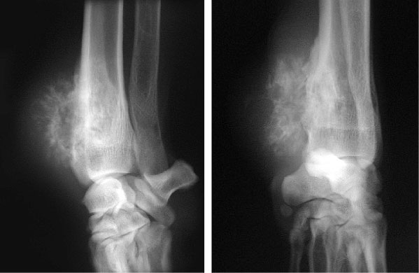 X-rays showing both destruction of bone and irregular new bone formation in a Great Dane with an osteosarcoma affecting the end of the radius (bone in the forearm)