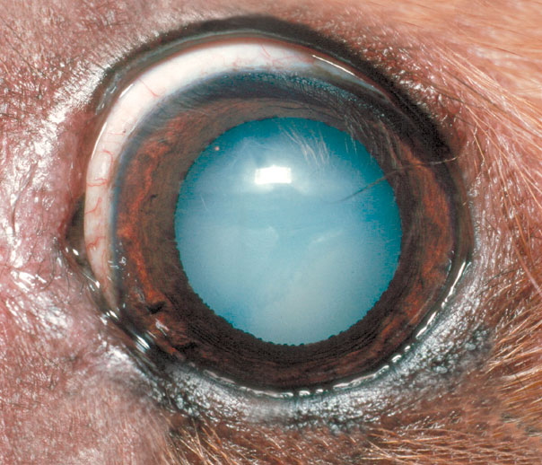 A total cataract - the normally black pupil is bluish white
