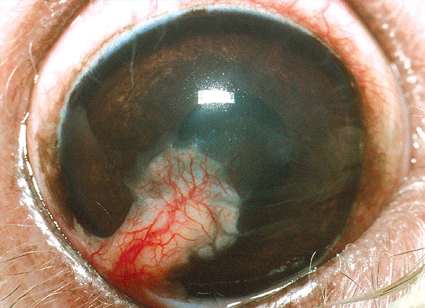 A conjunctival pedicle graft a few weeks after surgery