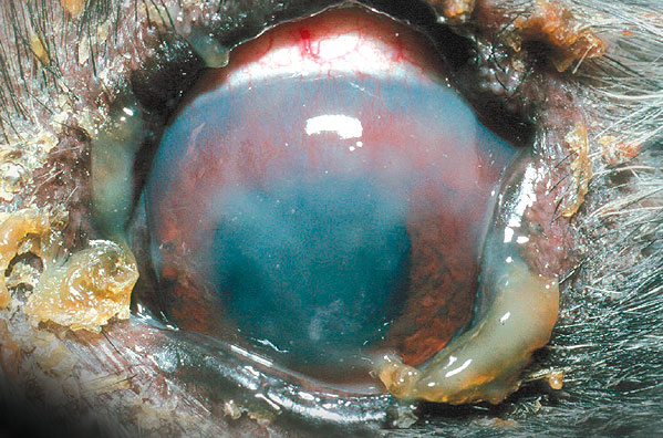 Marked blood vessel invasion in an advanced case of dry eye Marked blood vessel invasion in an advanced case of dry eye