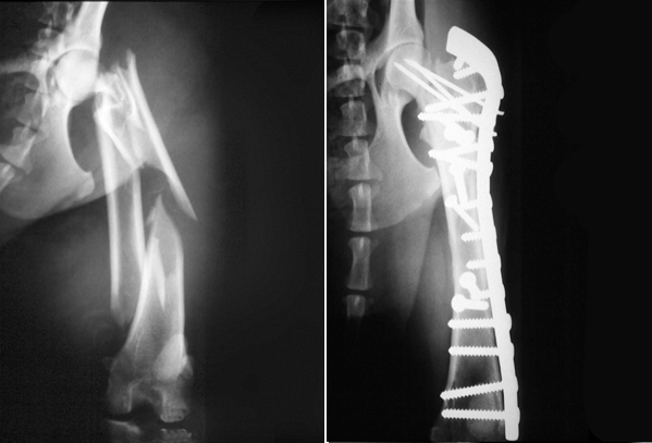 Multiple fractures of the femur in a Spaniel repaired with a plate, screws and pins