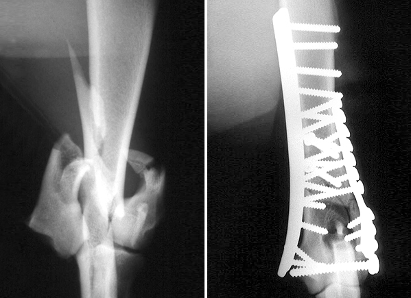 Severe fracture of the humeral condyle repaired with two plates and multiple screws