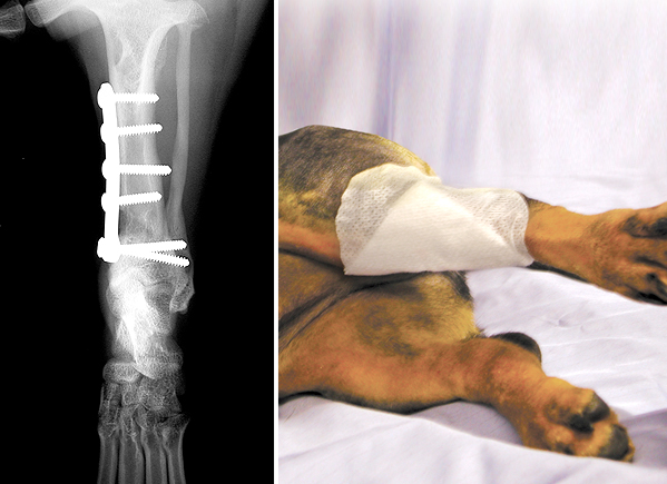 X-ray and photograph following surgery showing how the left tibia has been straightened and stabilised with a plate and screws.