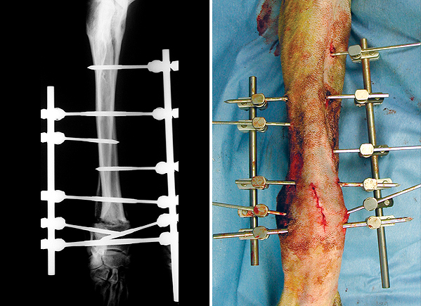 X-ray and photograph following surgery showing the straightened limb. The cut bones have been stabilised with pins placed through the skin and connected to bars on the inside and outside of the limb (known as an external skeletal fixator).